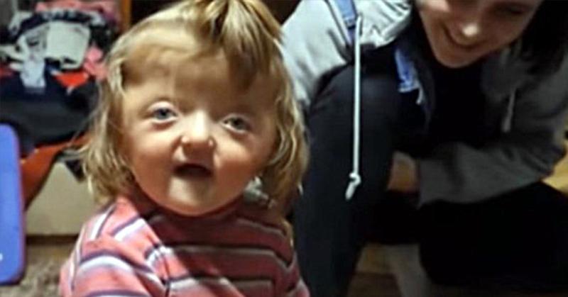 child with deformed skull