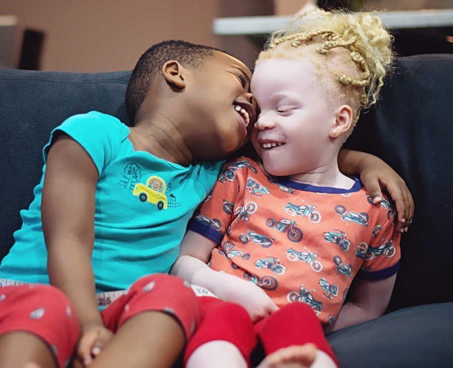 albino twins